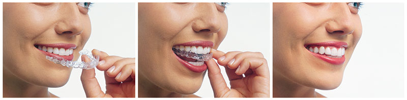 Invisalign aligners being placed in woman's mouth