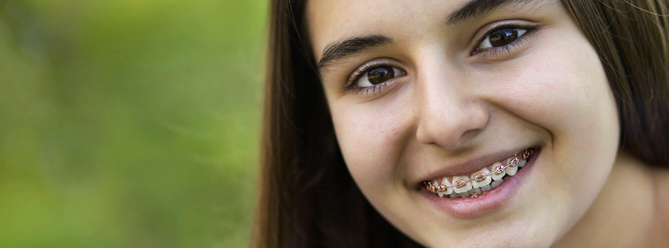 A smiling girl, showing off his new dental braces from Sunshine Pediatric Dentistry.