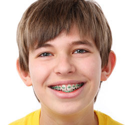 kid with braces in san antonio